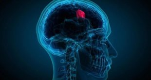 Brain Tumor: Some of the symptoms and signs to look out for